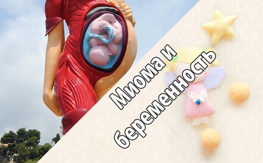 Миома и беременность - Мама и Кроха